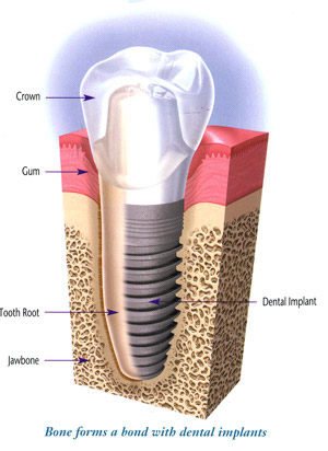 Implants - The Family Dentist – Masterton Dental Clinic